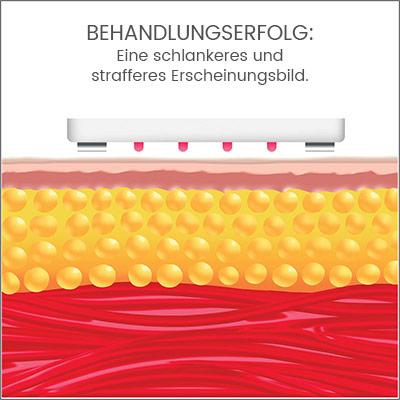 Darstellung von Fettzellen und Muskelgewege und Aufschrift 'Behandlungserfolg:...'