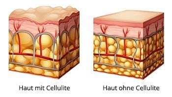 Abbildung von Haut mit und ohne Cellulite