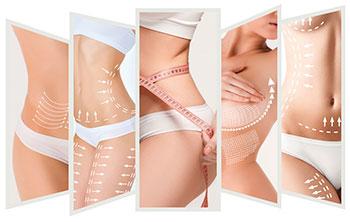 Cellulite Körper