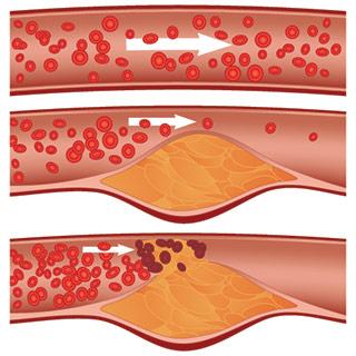 Fortschreitende Durchblutungsstörung