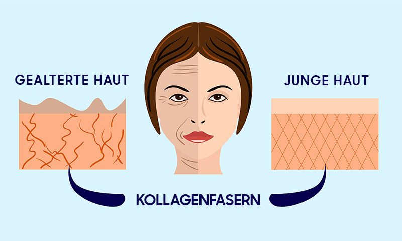 Representation of Collagen Fibers in Aged & Young Skin
